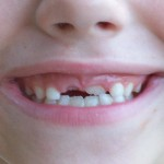 The Tooth Fairy Forgot – 5 ways to Save Face