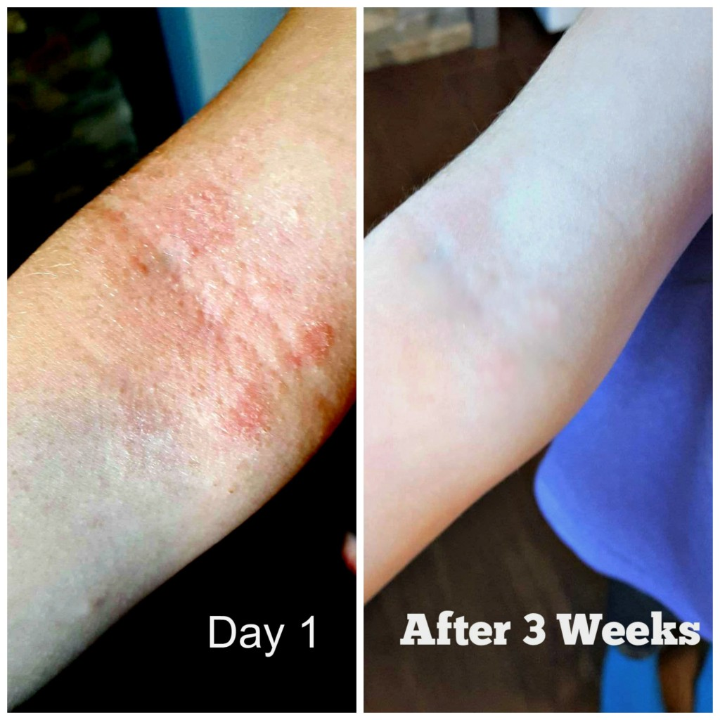 Baby Girls Arms Before and After Using Nutropic